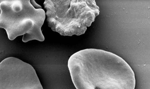 An SEM picture of P. falciparum-infected (top, with knobs) and uninfected erythrocyte